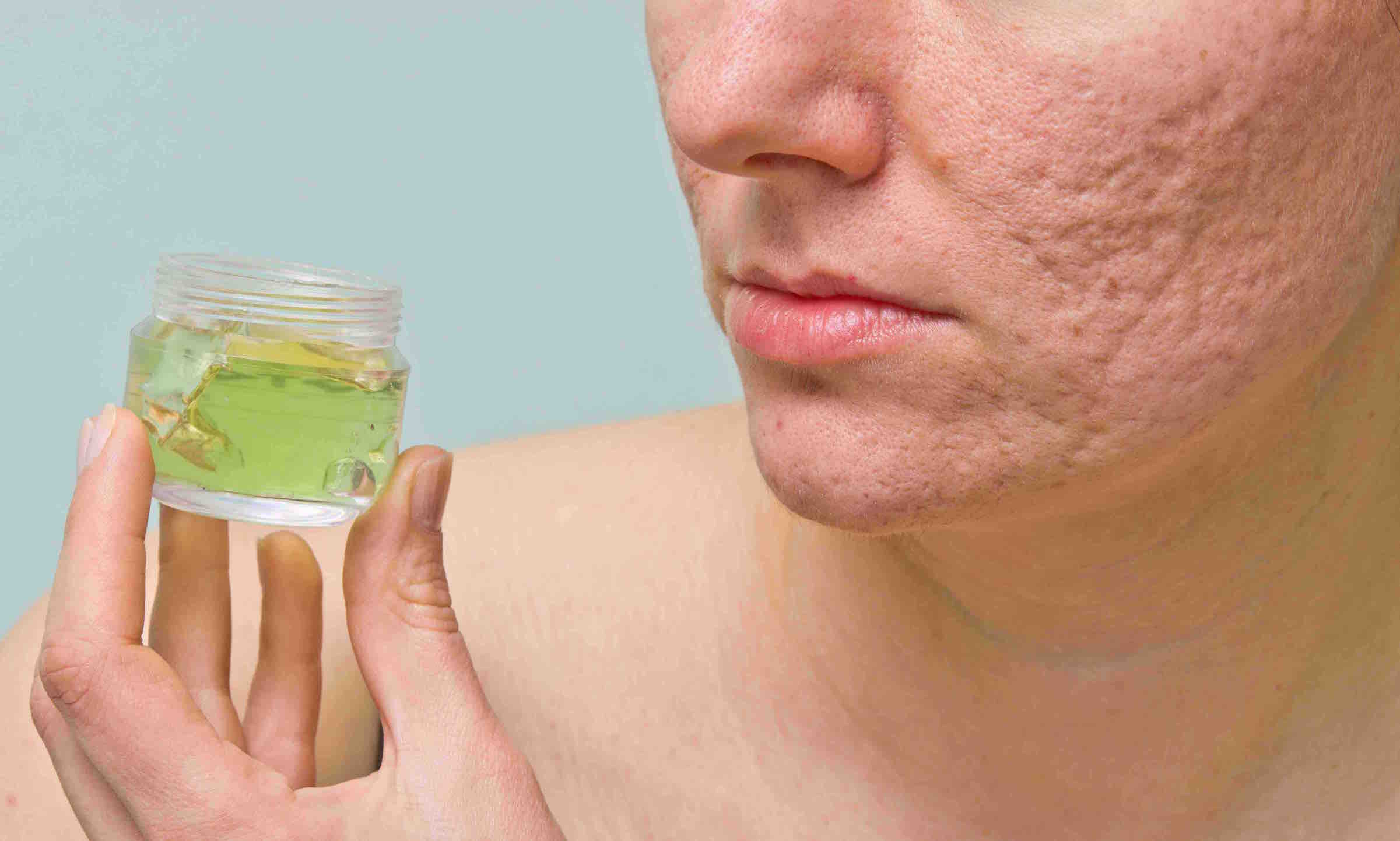 Ayurvedic Skin Care In Australia