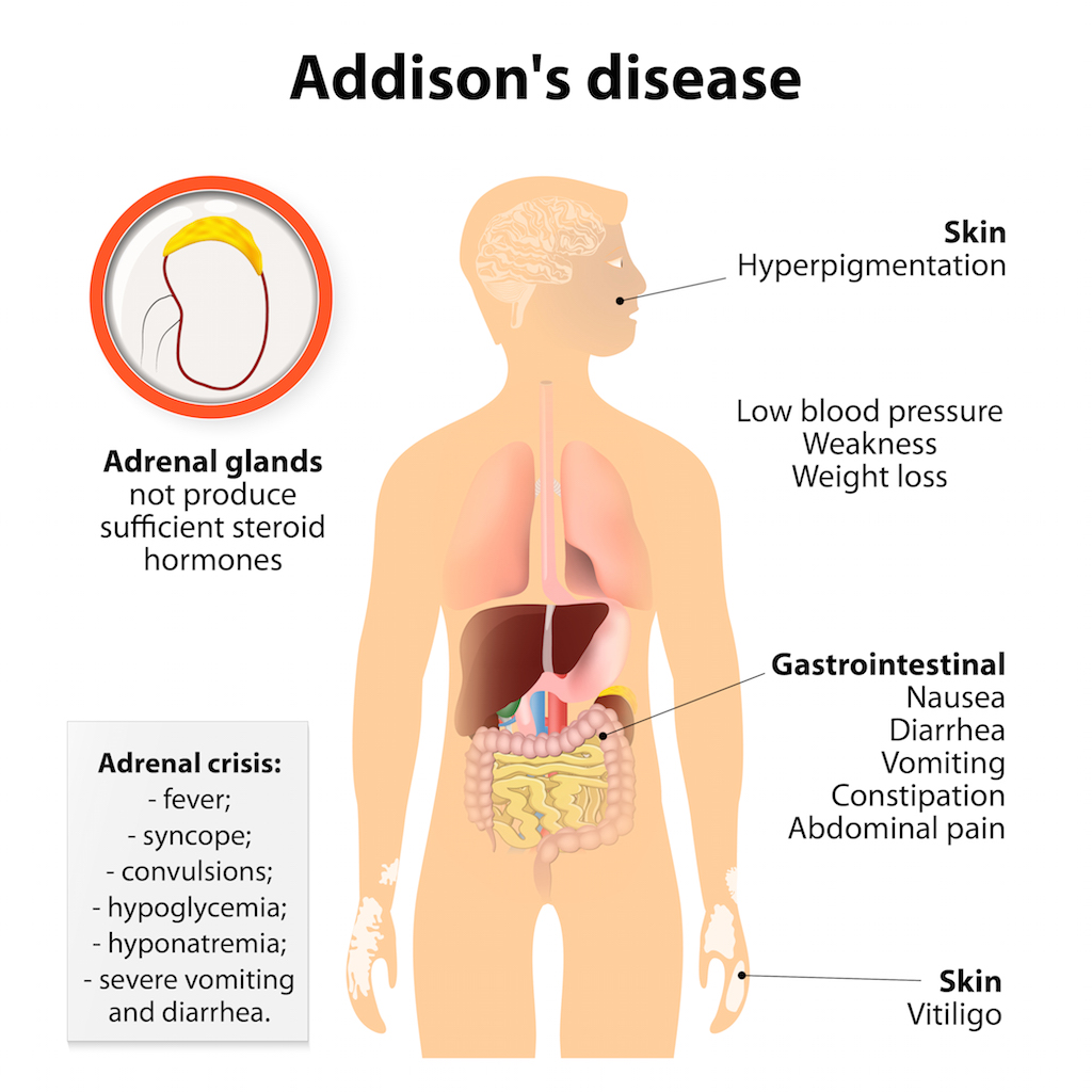 Addison Disease or Adrenal Insufficiency Natural Herbal Ayurvedic Medicine Melbourne Australia