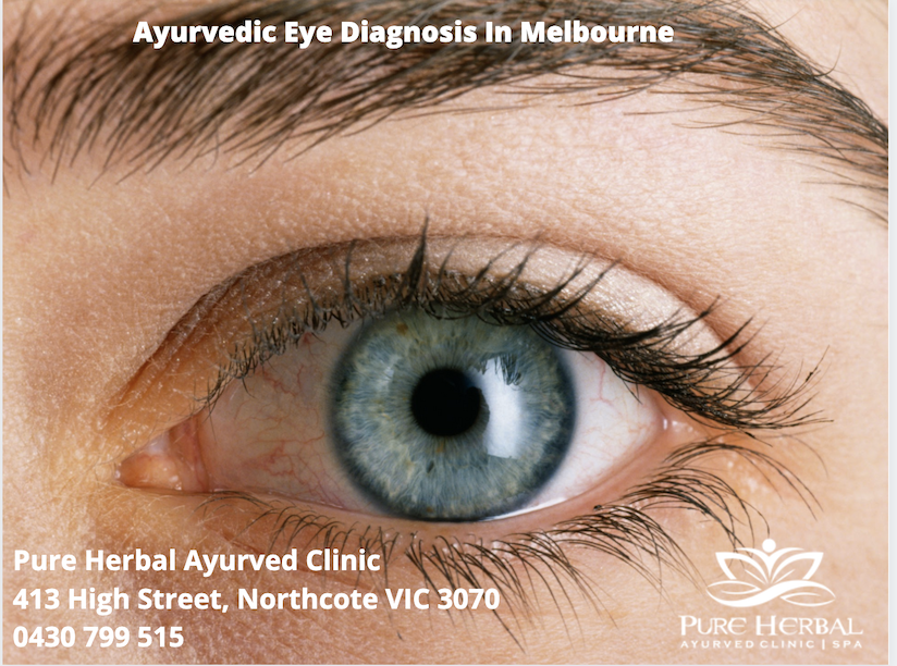 Ayurvedic Eye Diagnosis In Melbourne