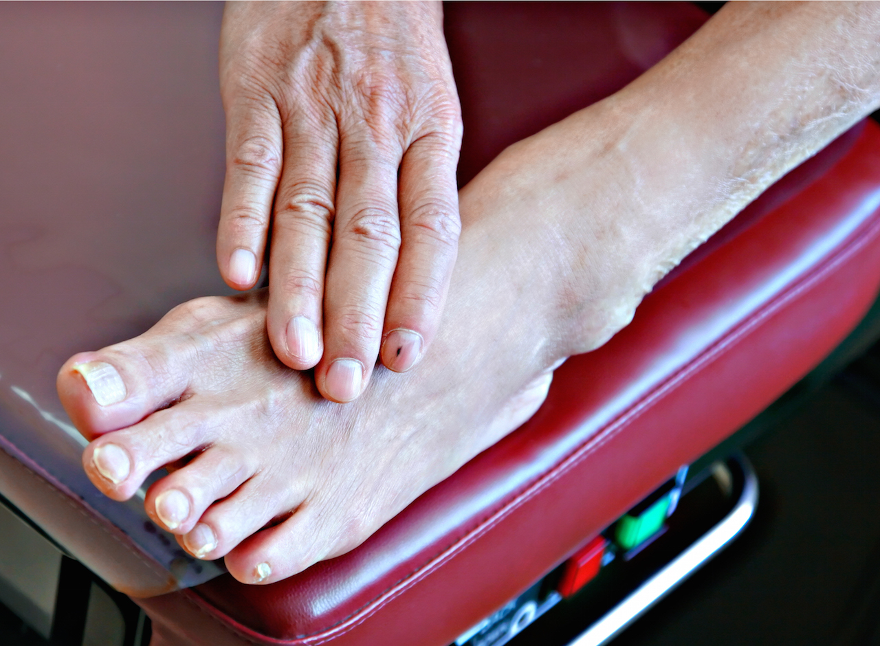 Diabetic Peripheral Neuropathy Natural Treatment