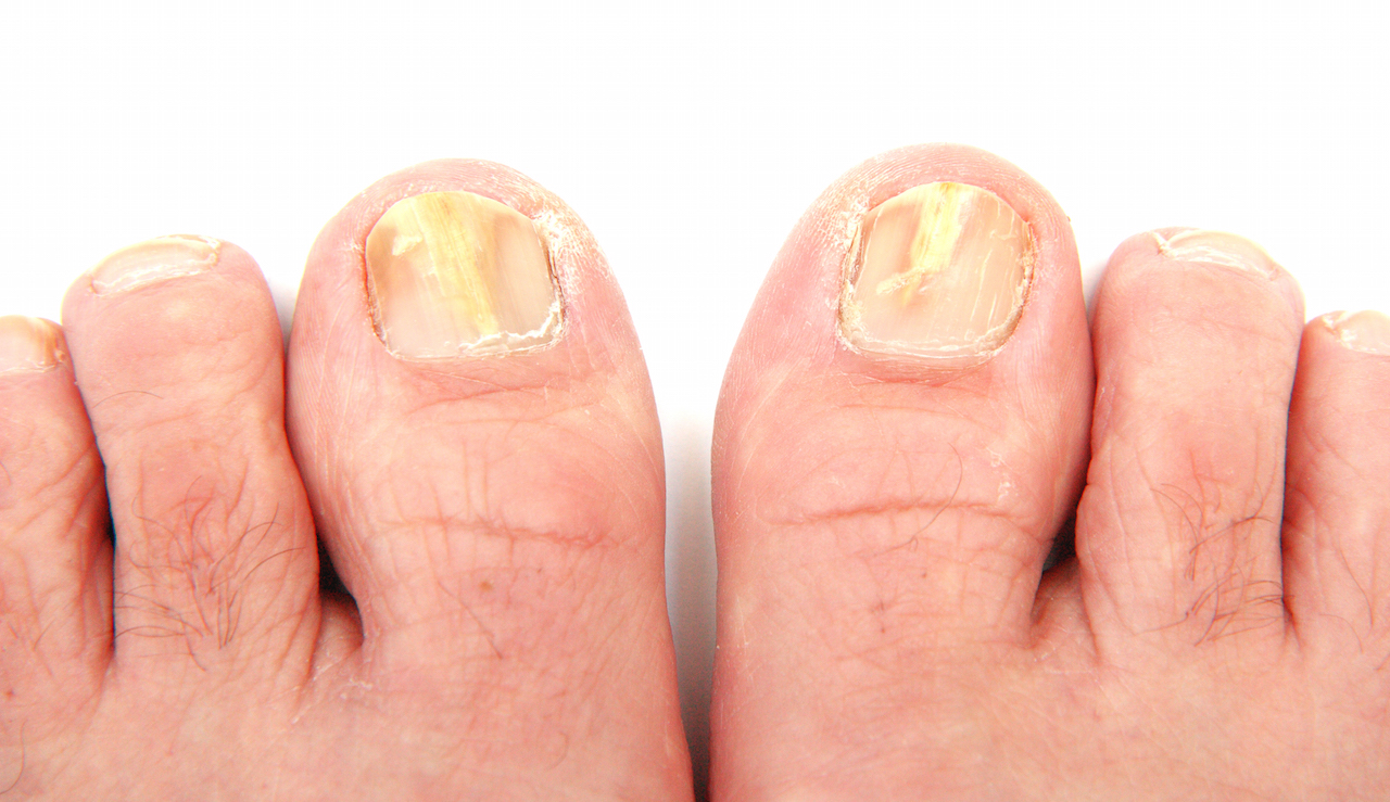 Image result for Toe Nail Fungus