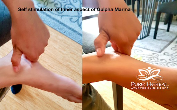 Gulpha Marma Leg pain Ayurveda Treatment