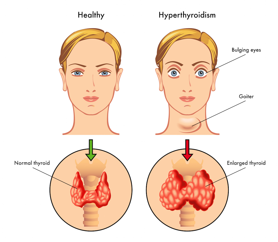 Hyperthyroidism Natural Ayurvedic Treatment Melbourne