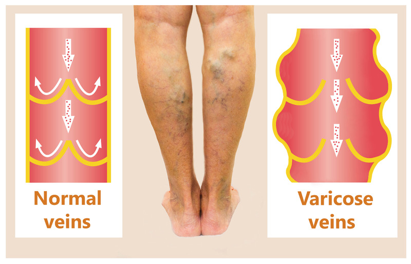 Varicose Ayurvedic natural treatment in Melbourne